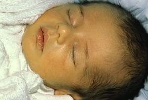baby jaundice