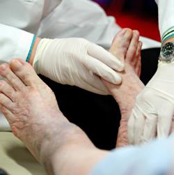 Tanda-tanda kerosakan saraf Autonomic Neuropathy