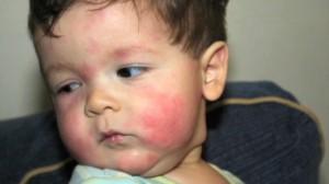 baby allergy 3